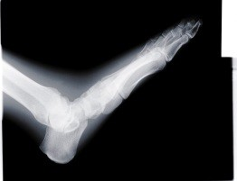 Athletes with Ankle Pain