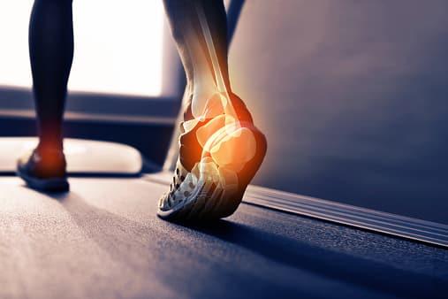 biomechanical analysis of an ankle sprain