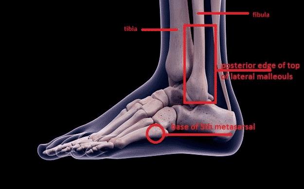 Ottawa ankle rules 1