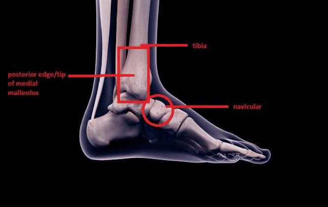 Ottawa ankle rules 2