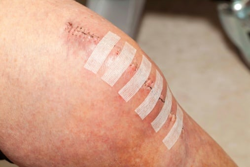 ACL surgery wound care